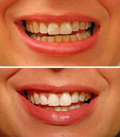 Professional dental service